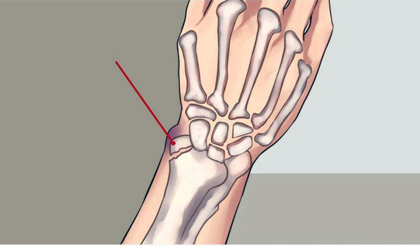 54° SICM National Congress: distal radius fracture cases